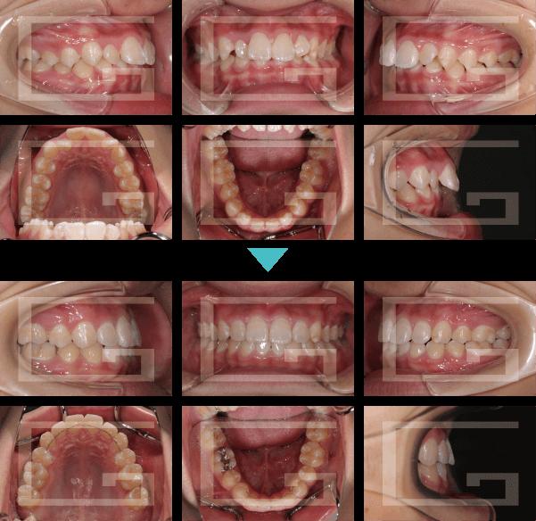上顎前突 case1