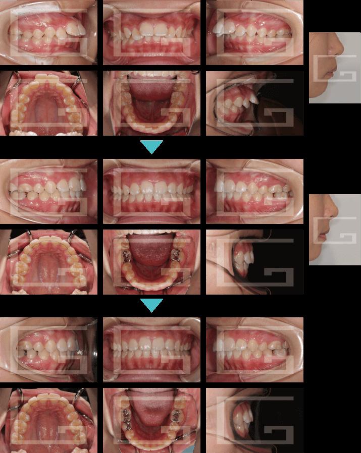 上顎前突 case2