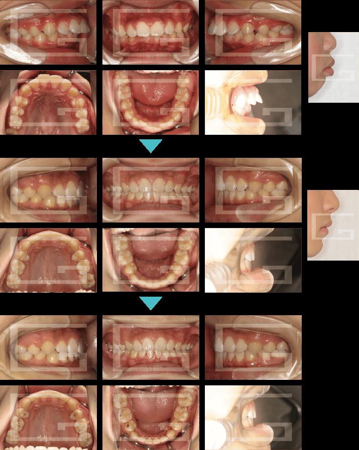 上顎前突 case3