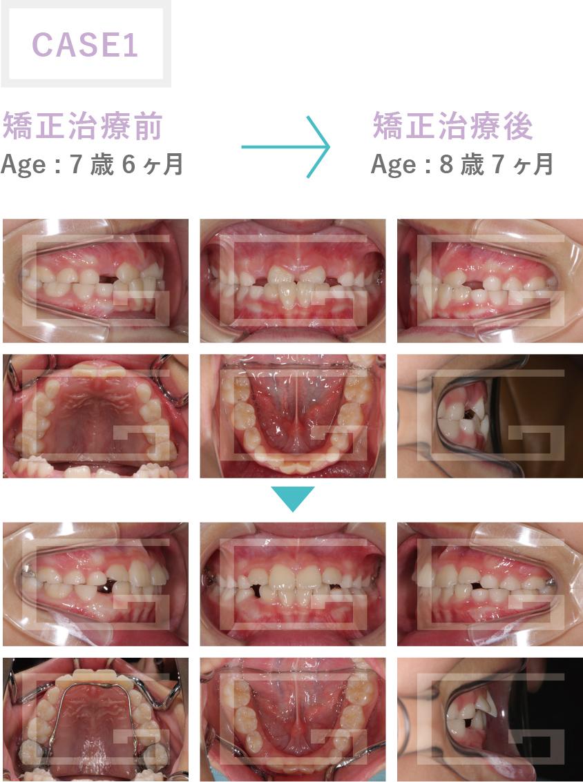 反対咬合、下顎前突 case1