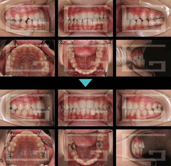 反対咬合、下顎前突 case2