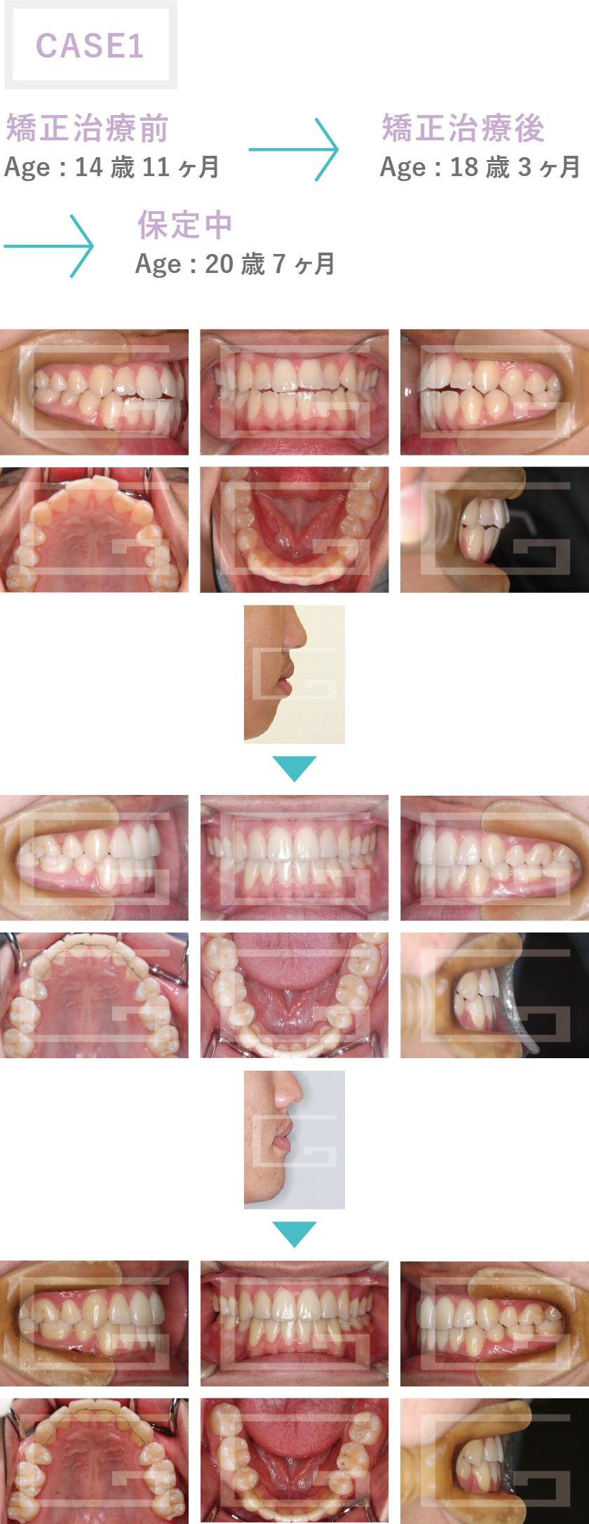 上下顎前突 case1