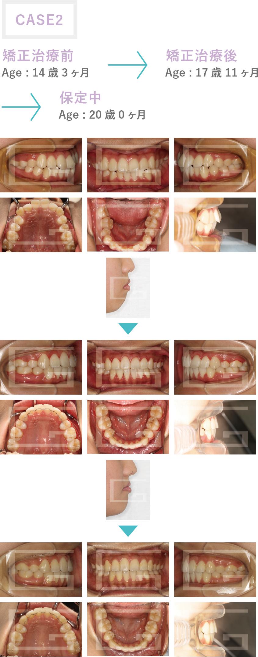 上下顎前突 case2