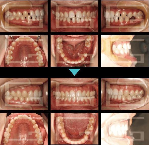 空隙歯列 case1